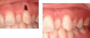 歯周病治療に力を入れる豊中市ますだ歯科医院