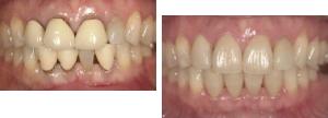 セラミック治療 歯のホワイトニングなどの審美歯科治療