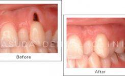 やせた歯ぐきの回復法
