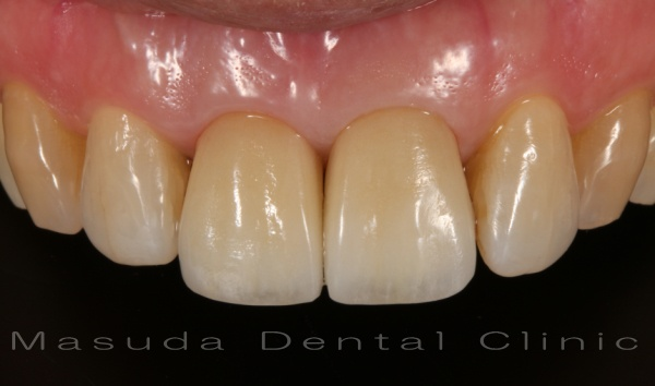 インプラント抜歯後即時埋入即時仮歯