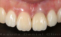 前歯へのインプラント治療